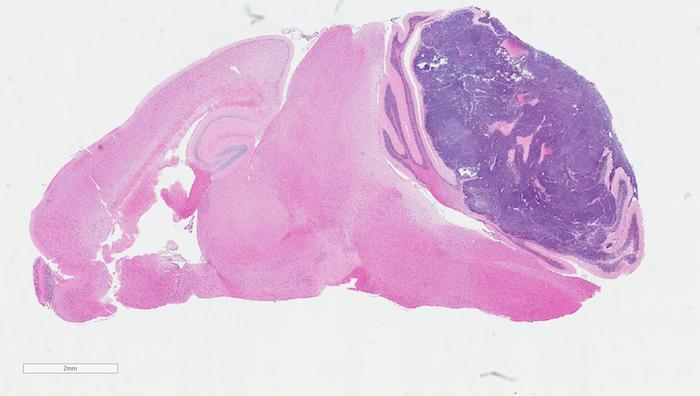 H_E of MG tumor