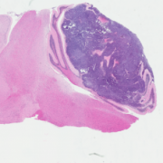 H and E of MGB tumor